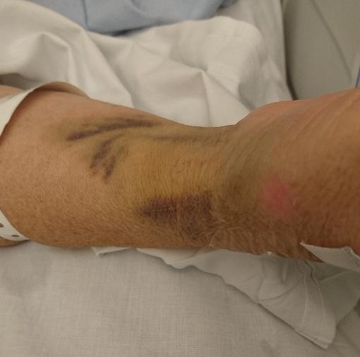 moms_bruises_2